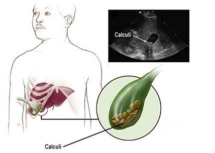colecistita cronica litiazica regim alimentar