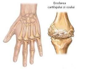 artrita simptome si tratament sciatica relief
