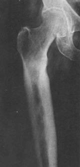 Osteoartrita hematogena