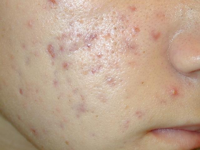 acnee juvenila tratament