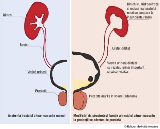 Misan Med Hipertrofia Benigna de Prostata (HBP) - Misan Med