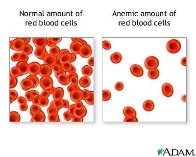imagine cu anemii