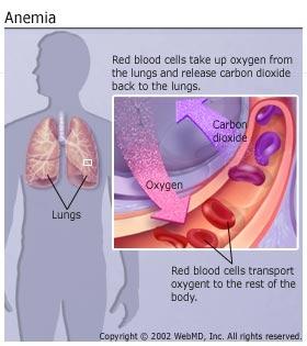 imagine cu anemiile
