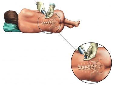Anestezia regionala - substantele anestezice locale, tehnici de anestezie