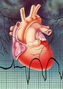 Anevrismul – leziune vasculara care genereaza avc