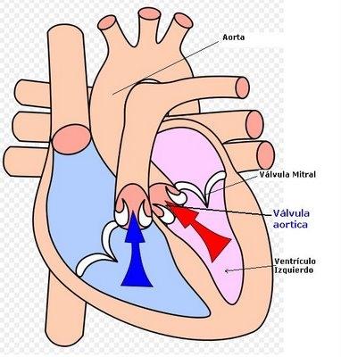 imagine cu aortica