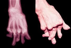 Artrita juvenila - prevenire si tratament