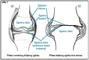 Artroza mainii