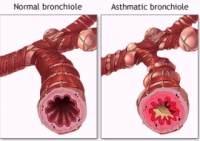 Astmul si pneumonia prin hipersensibilizare