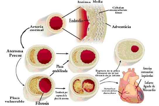 poza despre ateroscleroza