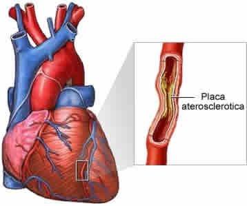 Tratamentul aterosclerozei