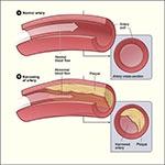 imagini aterosclerozei