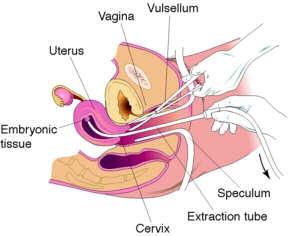 imagine cu avort