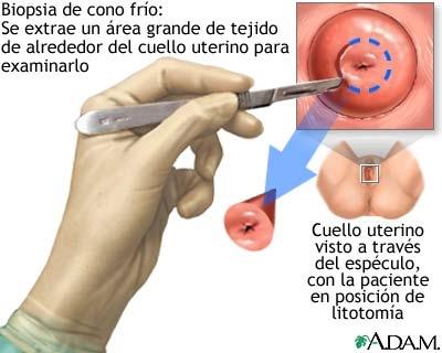 imagini biopsia