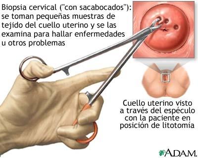 Laringologia (examenul laringelui) - laringoscopia, stroboscopia, biopsia