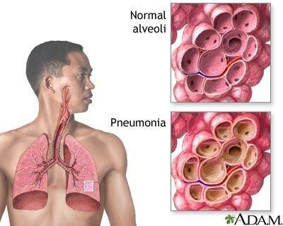 Bronhopneumonia si pneumonia pneumococica