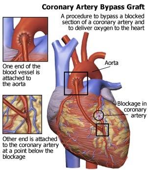 Bypass-ul coronarian si alte solutii terapeutice
