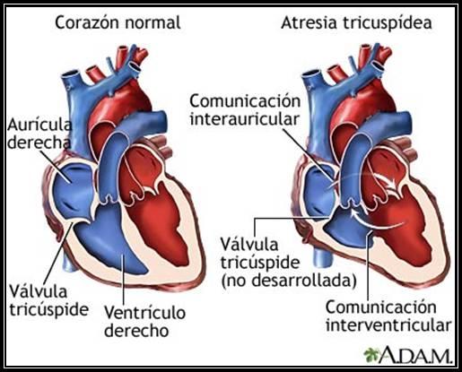 imagini cardiopatii
