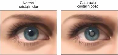 imagini cataracta