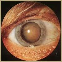 poza despre cataracta