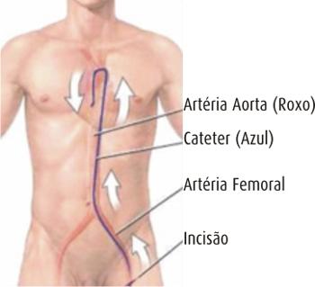 Cateterismul si coronarografia