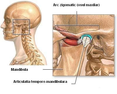 Cefaleea si durerea faciala� - migrena