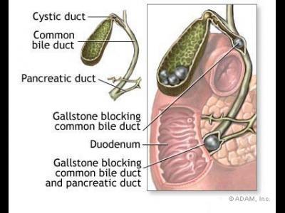 Cistita - simptome, diagnostic si tratament