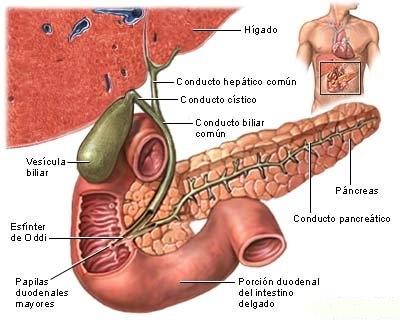 imagini colelitiaza