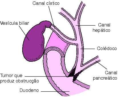 Colicistitele acute - bolile veziculei biliare