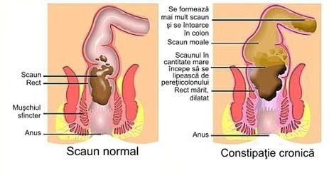Constipatie cronica