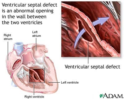 Defectul septal ventricular