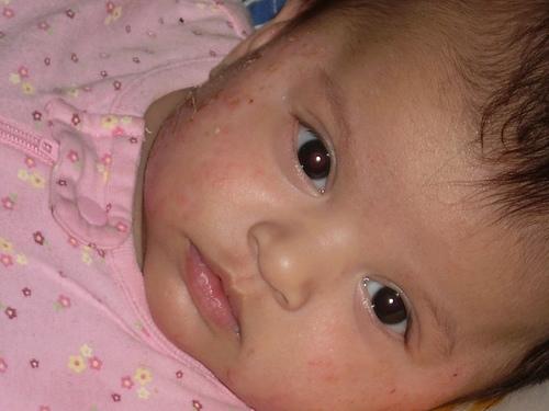 imagini dermatita