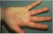 Dermatoza