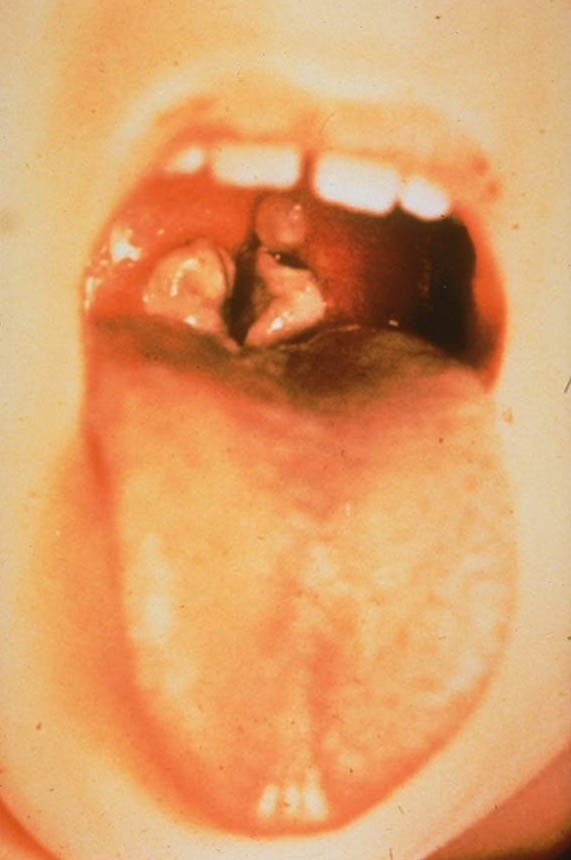 Difteria - tratamentul difteriei