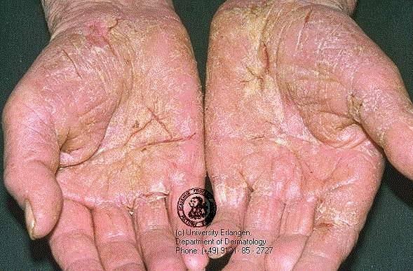 imagine cu eczeme