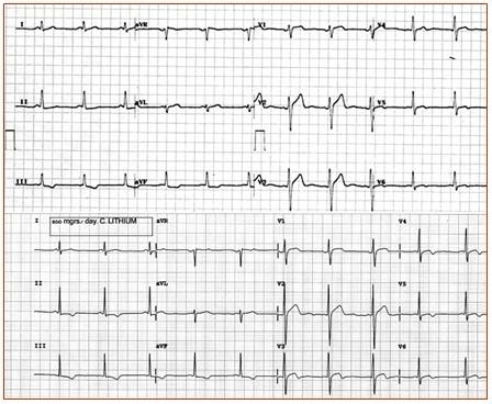 imagini electrocardiograma