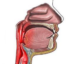 Angina (faringita) acuta
