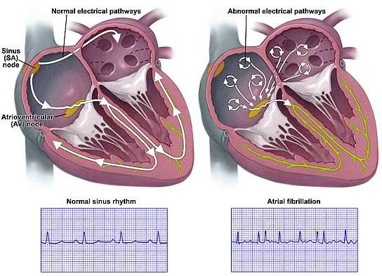 Fibrilatia ventriculara