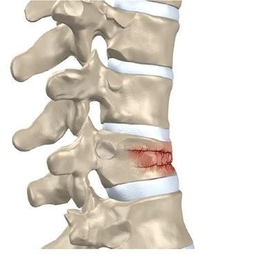 imagini fracturi