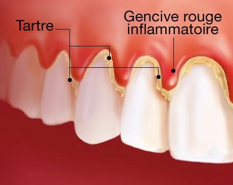 imagini gingivitele