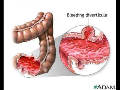 Hemoragia digestiva superioara - penetratia si perforatia ulceroasa