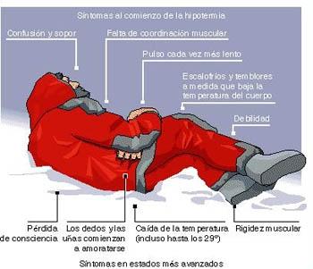 Hipotermia si degeraturile