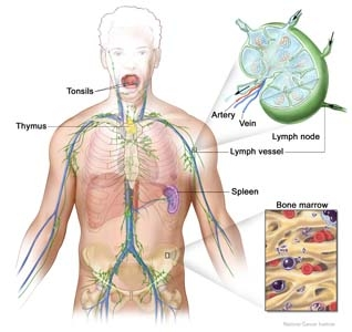 Anatomia patologica� a limfomului hodgkin. diagnosticul microscopic
