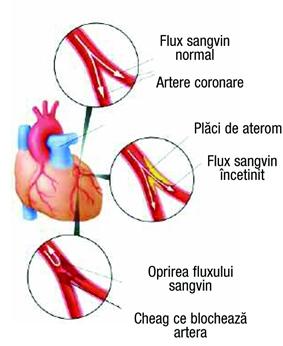 imagine cu infarctul