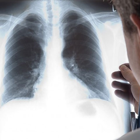 Insuficienta respiratorie - definitie, clasificare, diagnostic - terapie