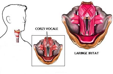 imagine cu laringita