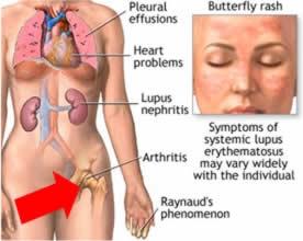 Lupus tuberculos