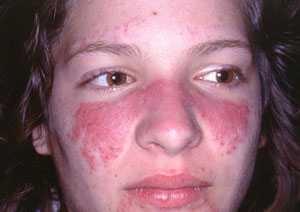 imagini lupus