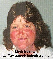 Lupus eritematos diseminat