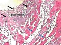 Miocarditele si cardiomiopatiile